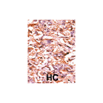 Phospho - CDC25B - S187 antibody (OAAB16020) in Human cancer, breast carcinoma, hepatocarcinoma cells using Immunohistochemistry