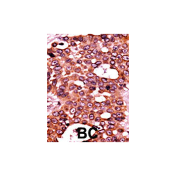 Phospho - CDC6 - S54 antibody (OAAB16023) in Human cancer, breast carcinoma, hepatocarcinoma cells using Immunohistochemistry