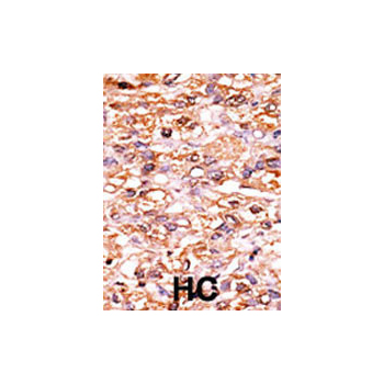 Phospho - p27Kip1 - S178 antibody (OAAB16082) in Human cancer, breast carcinoma, hepatocarcinoma cells using Immunohistochemistry