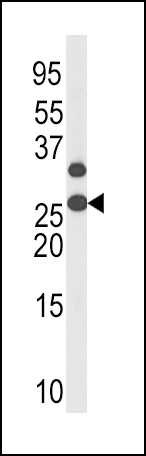 Phospho - p27Kip1 - T187 antibody (OAAB16084) in HL-60 cells using Western Blot