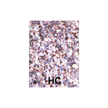BACE2C antibody - C - terminal region (OAAB16470) in Human cancer, breast carcinoma, hepatocarcinoma cells using Immunohistochemistry