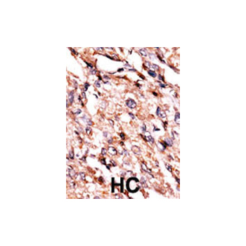 BCKDK antibody - center region (OAAB16882) in Human cancer, breast carcinoma, hepatocarcinoma cells using Immunohistochemistry
