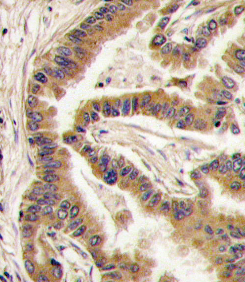 CSNK1A1 antibody - C - terminal region (OAAB17045) in Human lung carcinoma cells using Immunohistochemistry