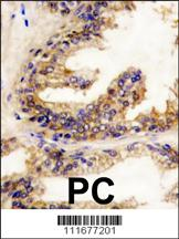 B - RAF antibody - center region (OAAB17264) in BRAF, Human Prostata, Human prostata carcinoma cells using Immunohistochemistry