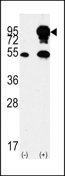 B - RAF antibody - center region (OAAB17264) in 293, BRAF cells using Western Blot