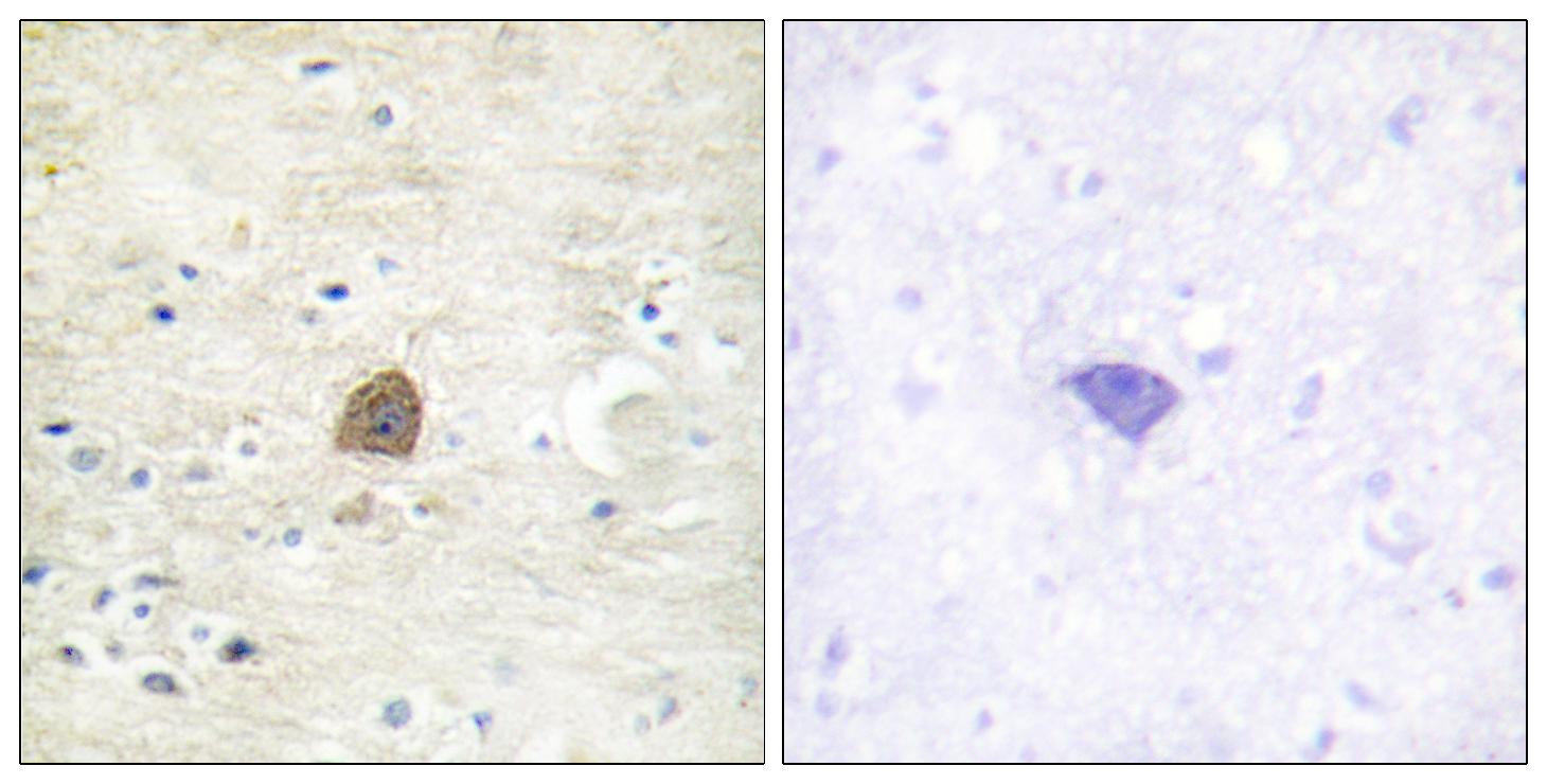 CAMK2A (Phospho-Thr305) Antibody (OAAF00005) in Human brain cells using Immunohistochemistry