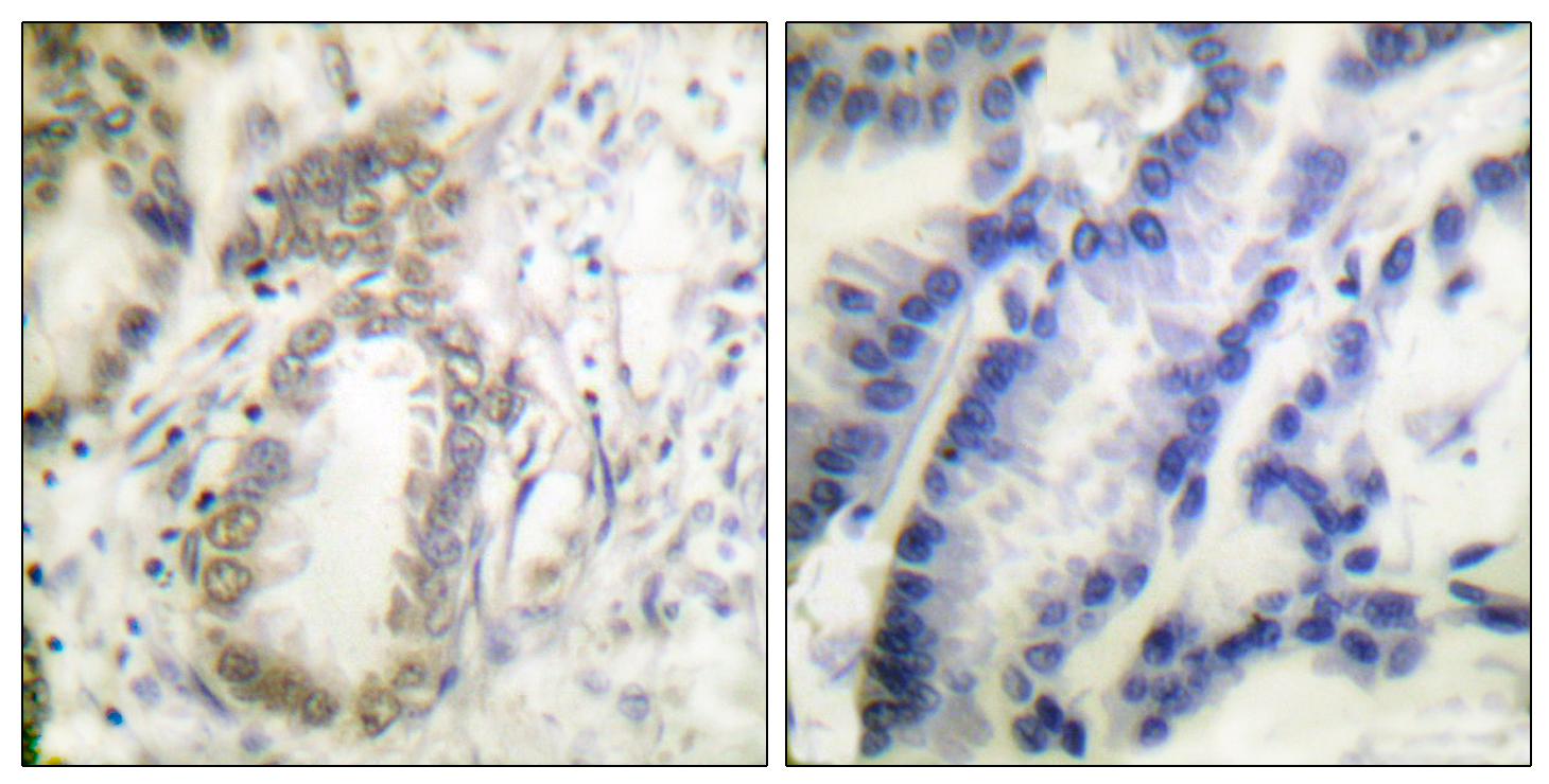 CEBPA (Phospho-Ser21) Antibody (OAAF00037) in Human colon carcinoma cells using Immunohistochemistry