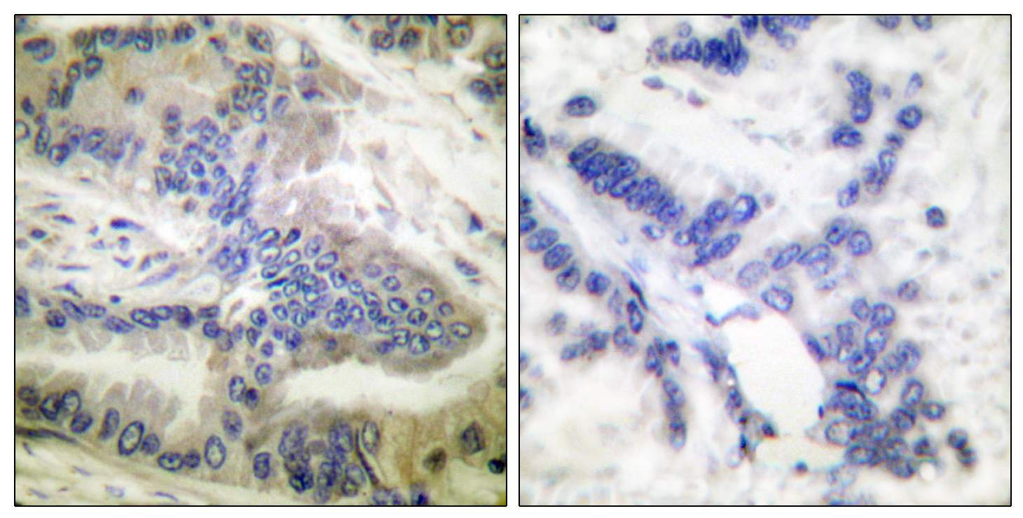 CASP6 (Phospho-Ser257) Antibody (OAAF00038) in Human colon carcinoma cells using Immunohistochemistry