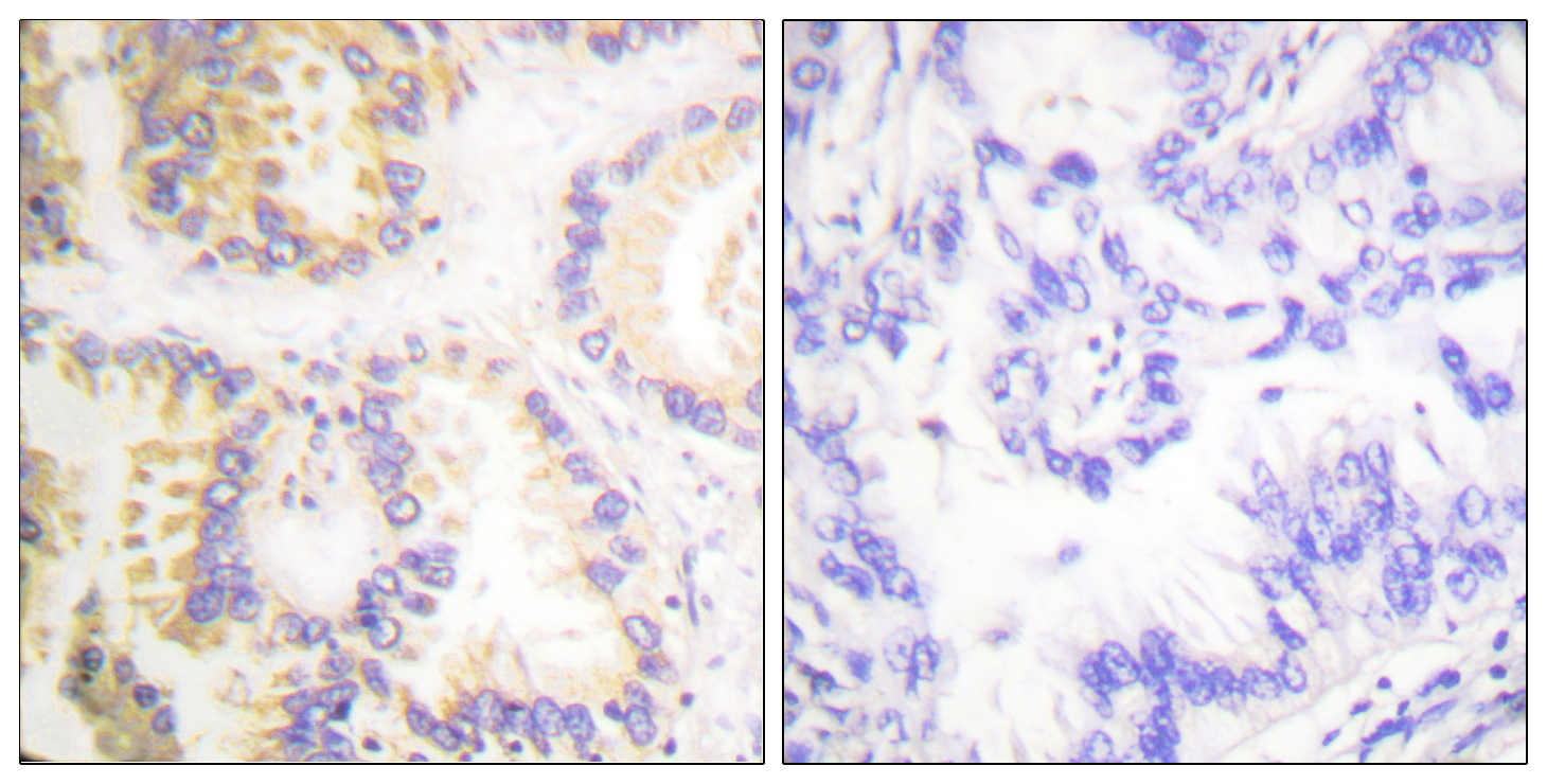CASP8 (Phospho-Ser347) Antibody (OAAF00039) in Human lung carcinoma cells using Immunohistochemistry