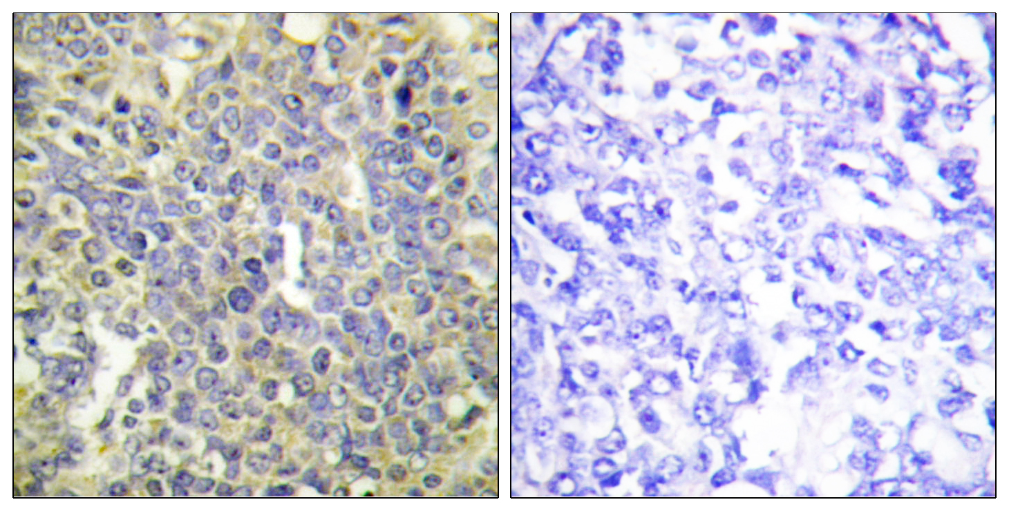 CASP9 (Phospho-Thr125) Antibody (OAAF00040) in Human lung carcinoma cells using Immunohistochemistry