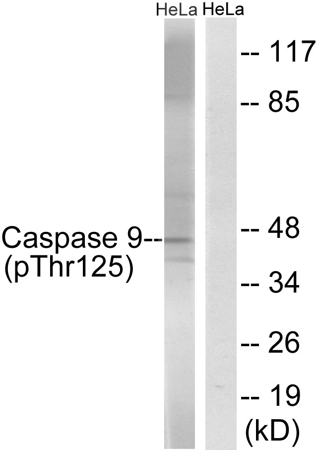 CASP9 (Phospho-Thr125) Antibody (OAAF00040) in HeLa cells using Western Blot