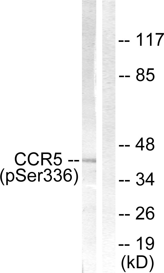 CCR5 (Phospho-Ser336) Antibody (OAAF00041) in Jurkat cells using Western Blot