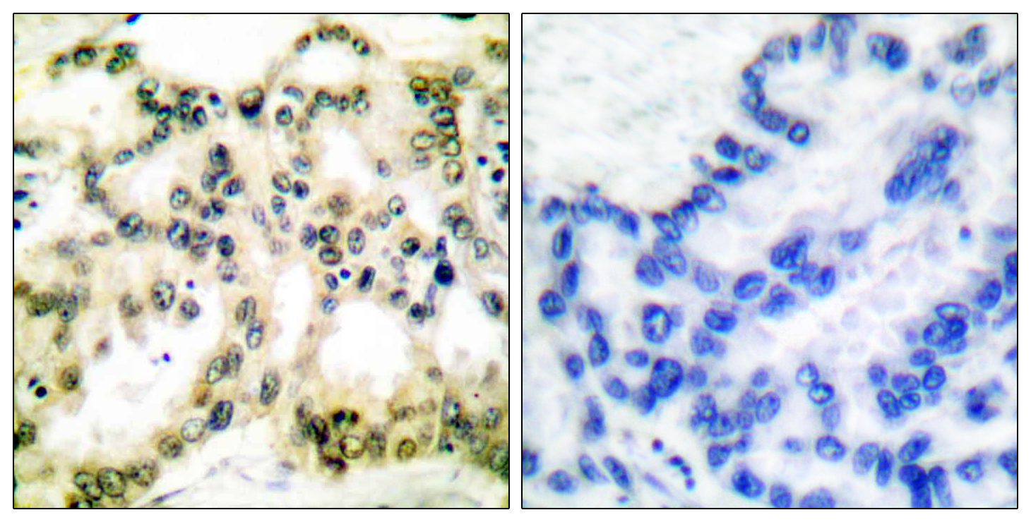CCNB1 (Phospho-Ser126) Antibody (OAAF00044) in Human lung carcinoma cells using Immunohistochemistry