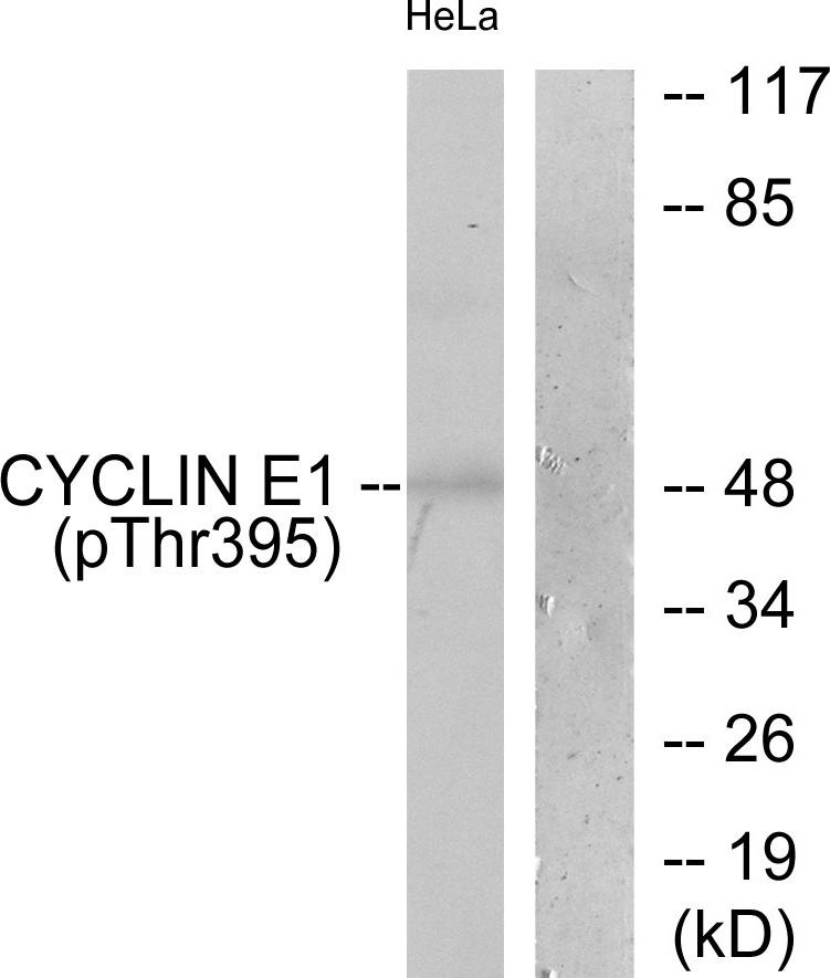 CCNE1 (Phospho-Thr395) Antibody (OAAF00045) in HeLa cells using Western Blot