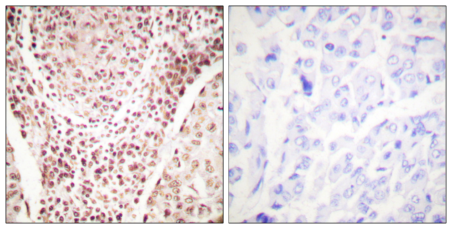 CHEK2 (Phospho-Thr387) Antibody (OAAF00071) in Human breast carcinoma cells using Immunohistochemistry