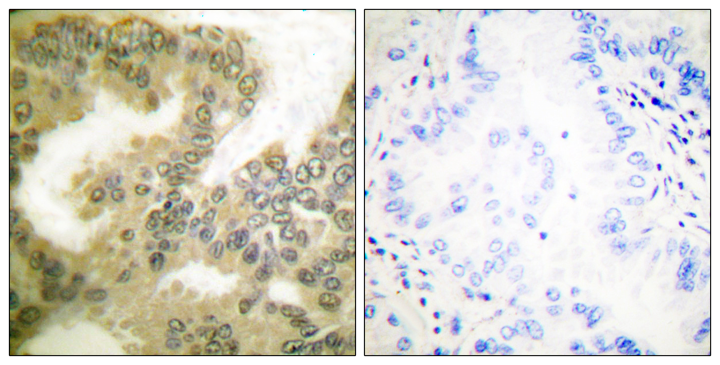 CCND3 (Phospho-Thr283) Antibody (OAAF00073) in Human lung carcinoma cells using Immunohistochemistry