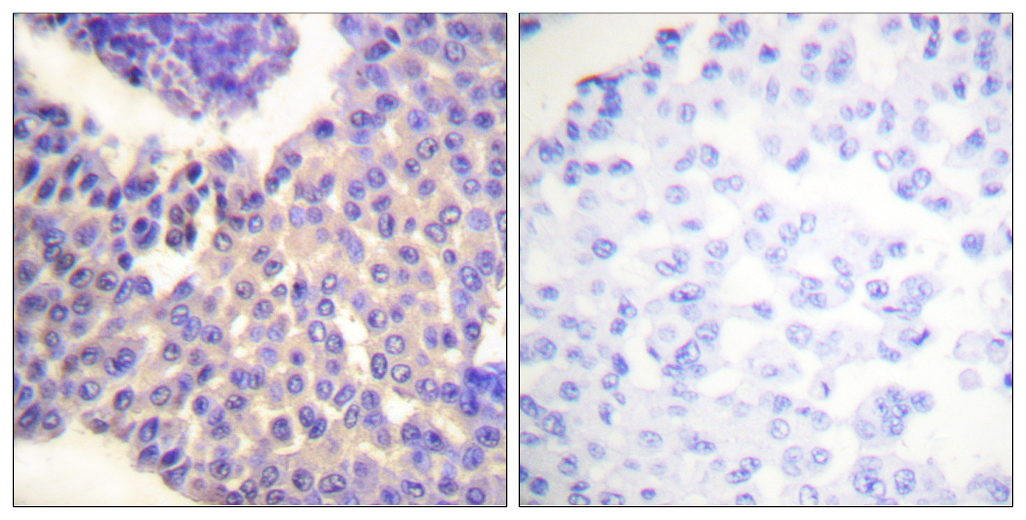 ARRB1 (Phospho-Ser412) Antibody (OAAF00087) in Human breast carcinoma cells using Immunohistochemistry