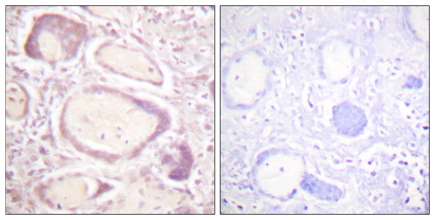 CCNB1 (Phospho-Ser147) Antibody (OAAF00123) in Human placenta cells using Immunohistochemistry
