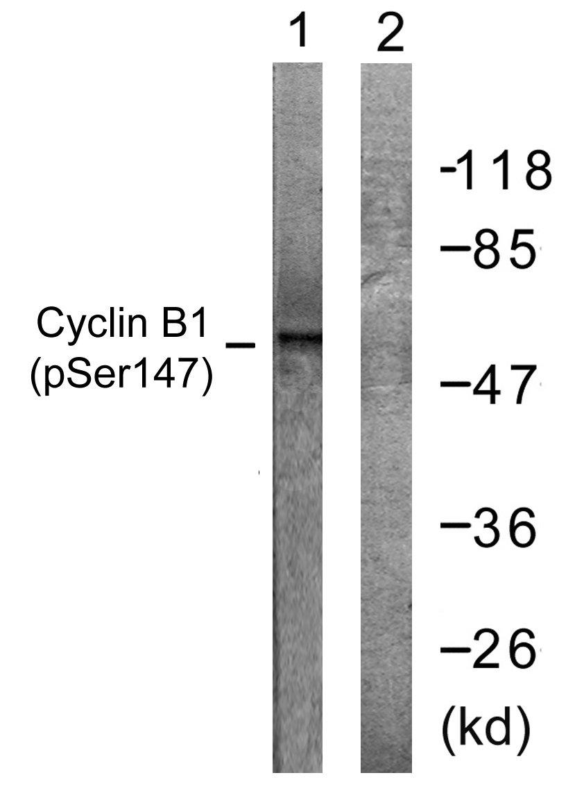 CCNB1 (Phospho-Ser147) Antibody (OAAF00123) in Jurkat cells using Western Blot