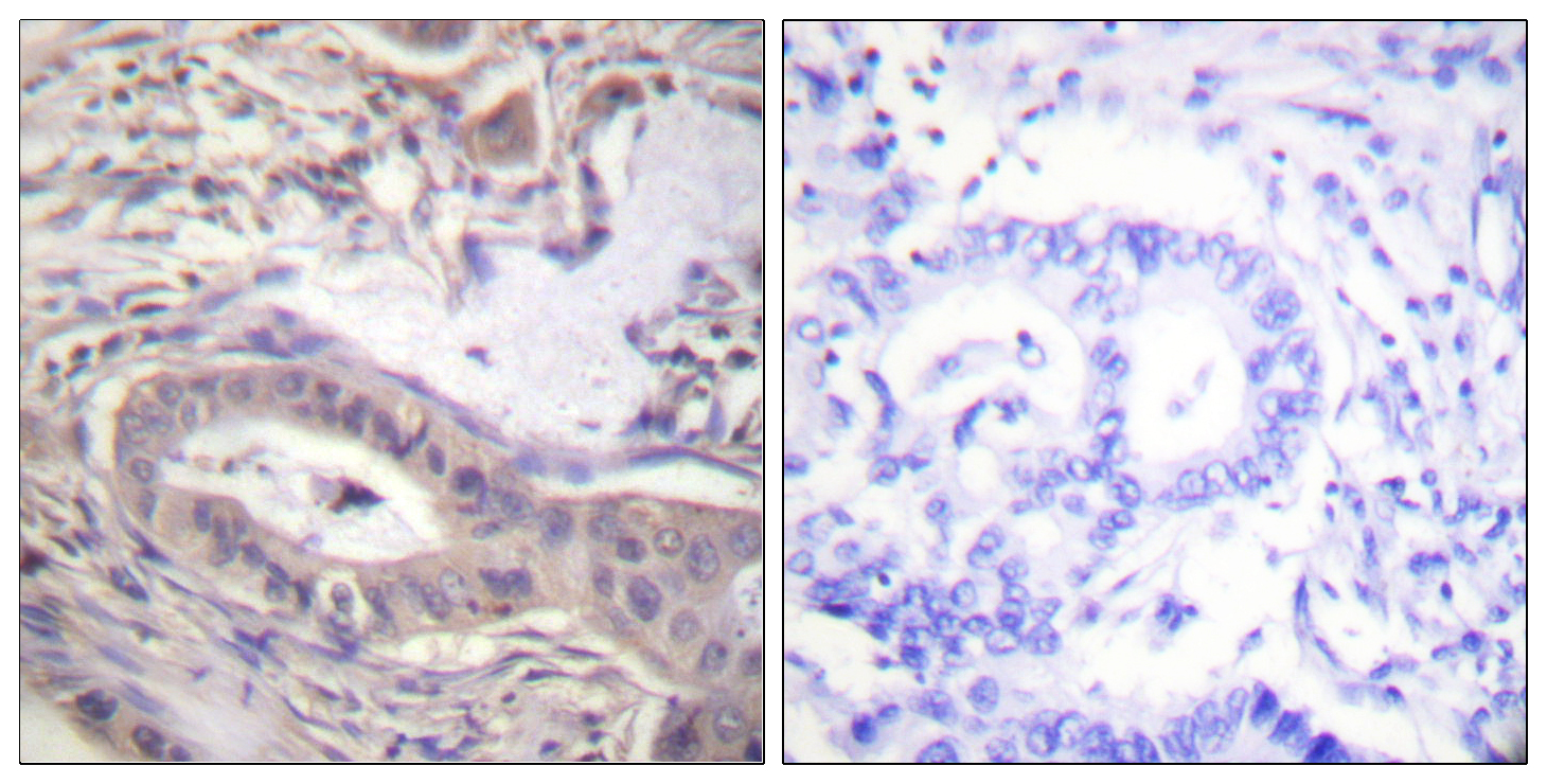BCL2L1 (Phospho-Thr47) Antibody (OAAF00141) in Human lung carcinoma cells using Immunohistochemistry