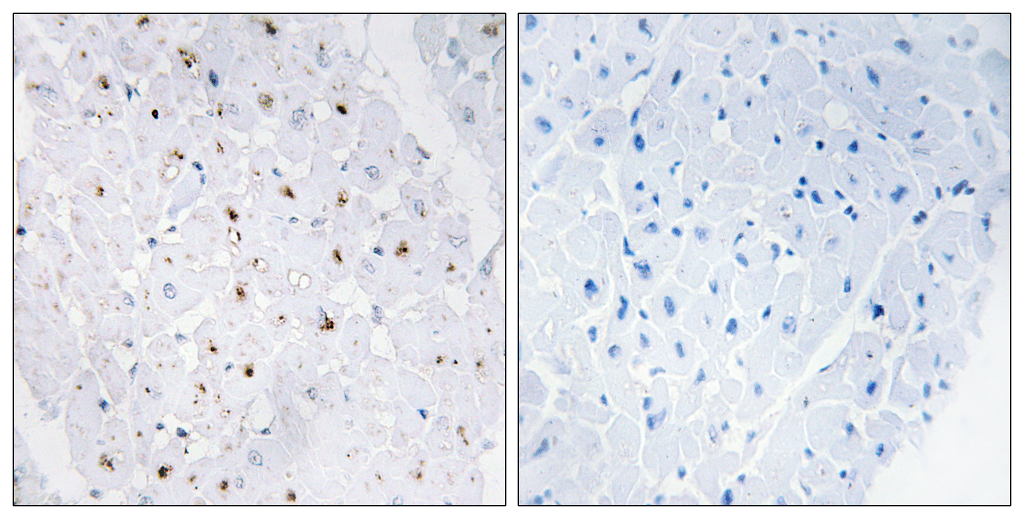 BLM (Phospho-Thr99) Antibody (OAAF00142) in Human heart cells using Immunohistochemistry