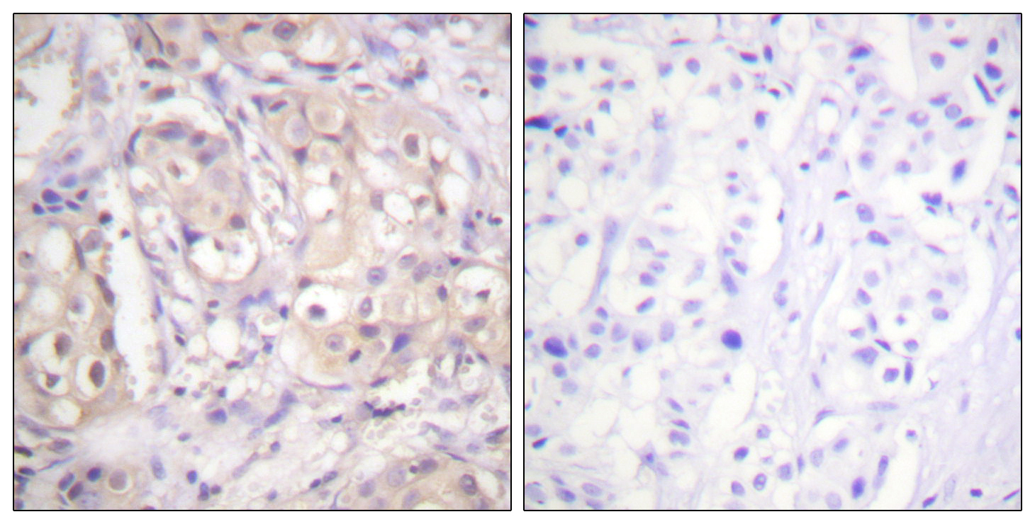 BRAF (Phospho-Thr598) Antibody (OAAF00143) in Human breast carcinoma cells using Immunohistochemistry