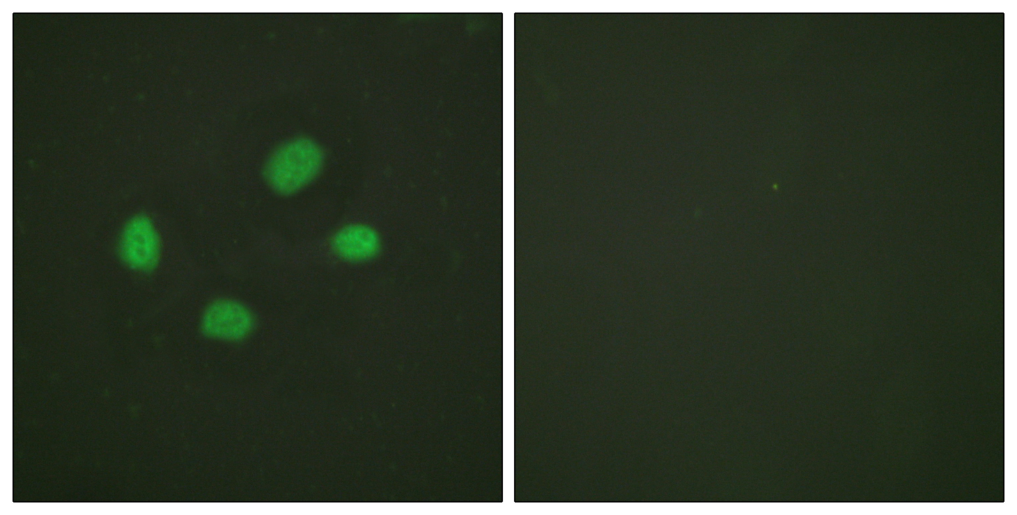 CHEK2 (Phospho-Thr383) Antibody (OAAF00144) in HeLa cells using Immunofluorescence
