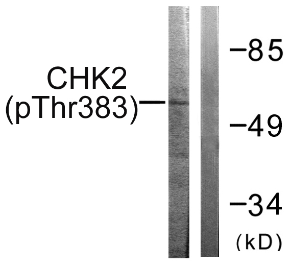 CHEK2 (Phospho-Thr383) Antibody (OAAF00144) in COS7 cells using Western Blot