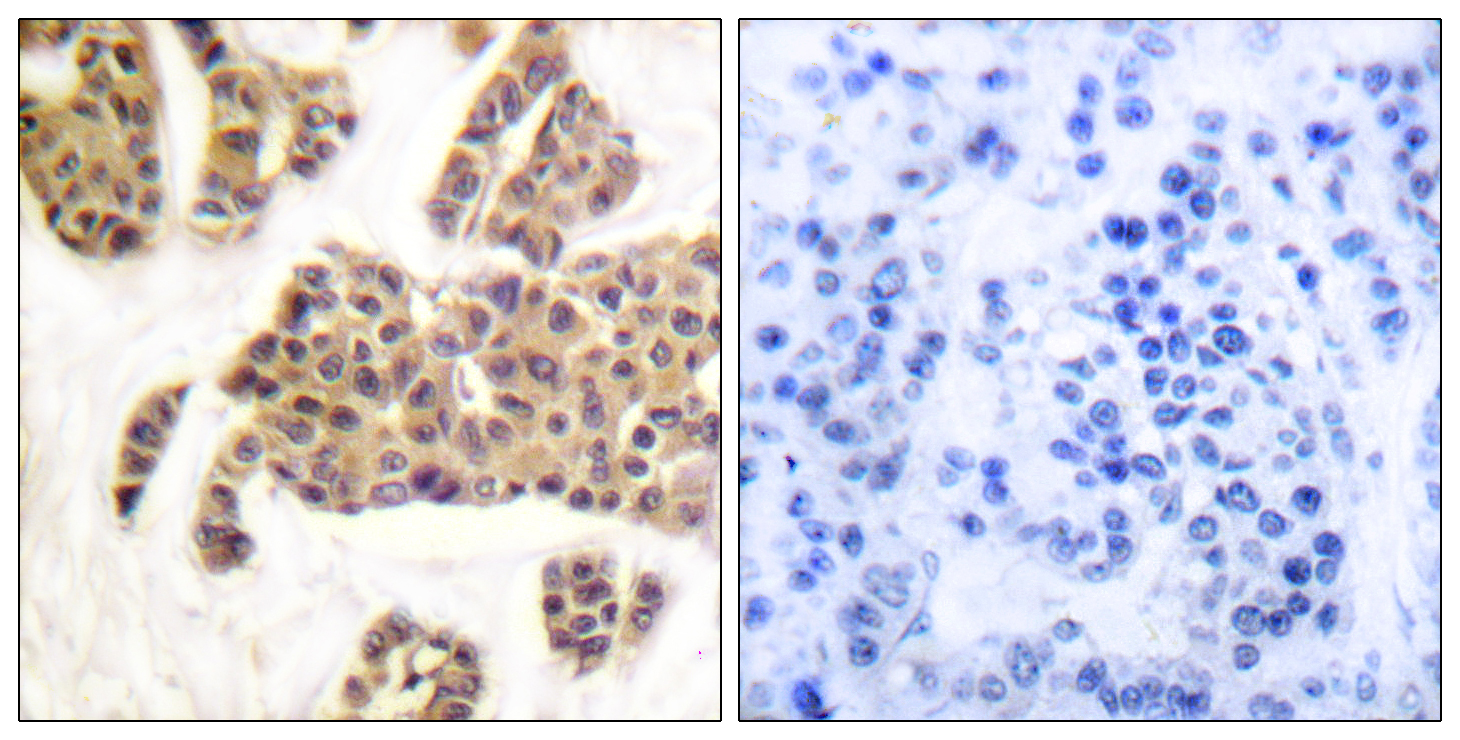 BAD (Phospho-Ser91/128) Antibody (OAAF00161) in Human breast carcinoma cells using Immunohistochemistry