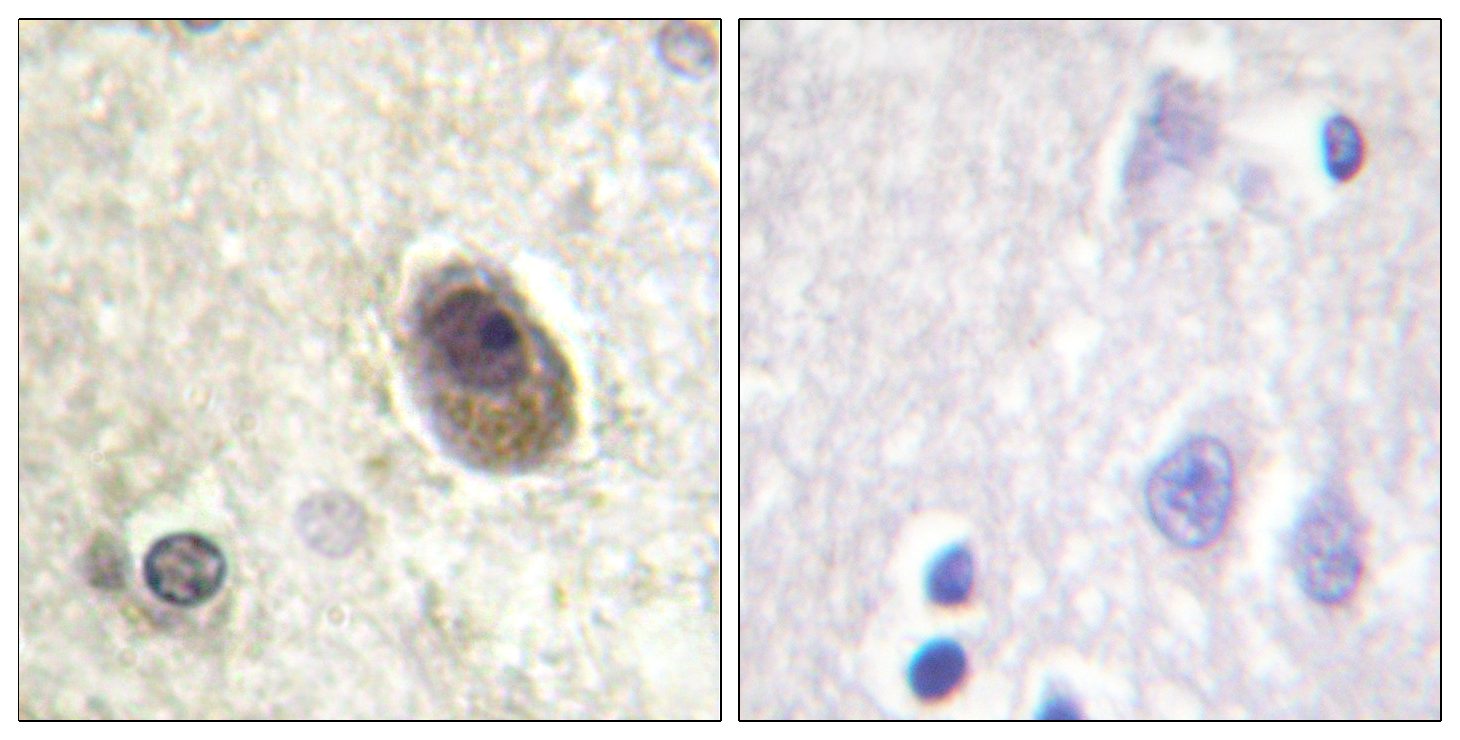 BAD (Phospho-Ser134) Antibody (OAAF00162) in Human brain cells using Immunohistochemistry