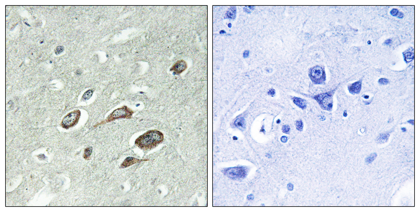 CALM1 (Phospho-Thr79+Ser81) Antibody (OAAF00166) in Human brain cells using Immunohistochemistry