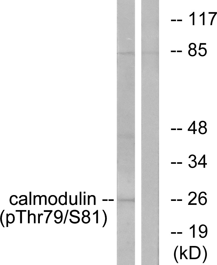 CALM1 (Phospho-Thr79+Ser81) Antibody (OAAF00166) in Jurkat cells using Western Blot
