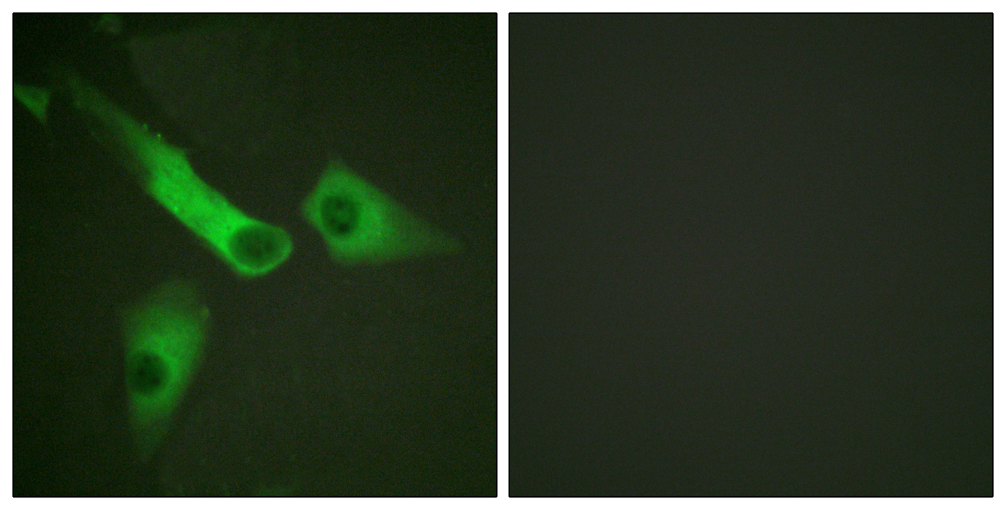 CASP9 (Phospho-Tyr153) Antibody (OAAF00167) in HeLa cells using Immunofluorescence