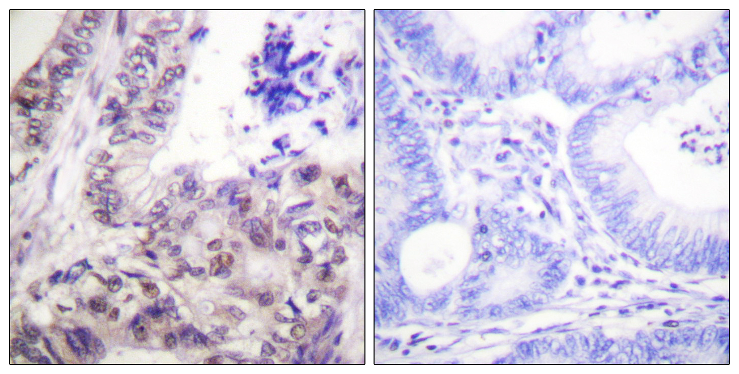 CASP9 (Phospho-Ser144) Antibody (OAAF00168) in Human breast carcinoma cells using Immunohistochemistry