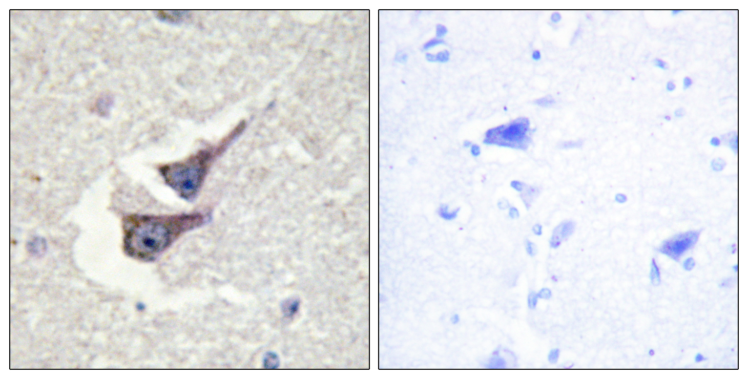 CAT (Phospho-Tyr385) Antibody (OAAF00170) in Human brain cells using Immunohistochemistry