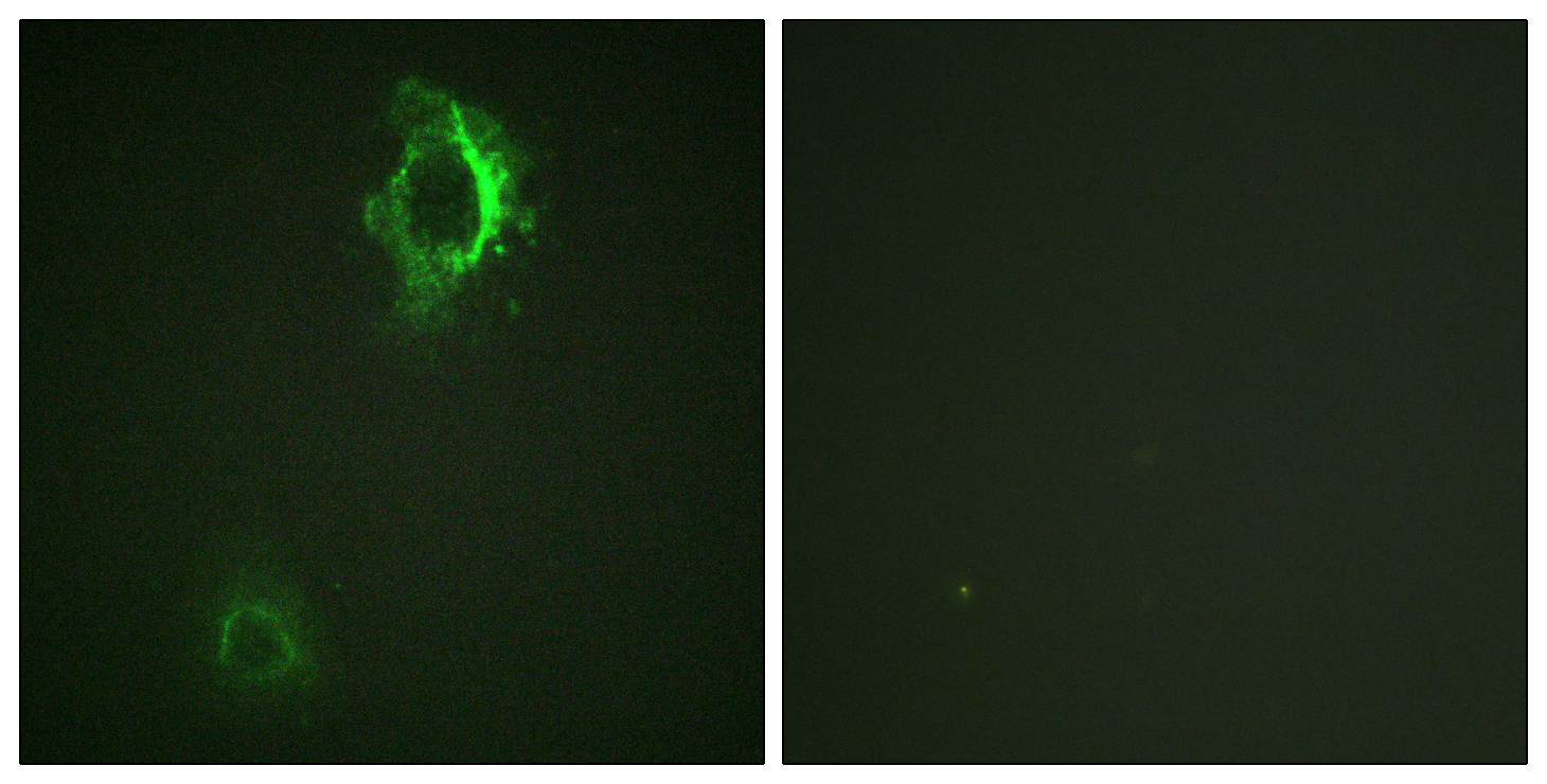 CD5 (Phospho-Tyr453) Antibody (OAAF00175) in HepG2 cells using Immunofluorescence