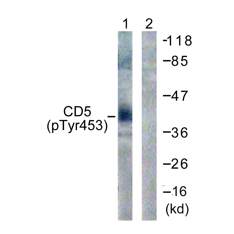 CD5 (Phospho-Tyr453) Antibody (OAAF00175) in 293 cells using Western Blot