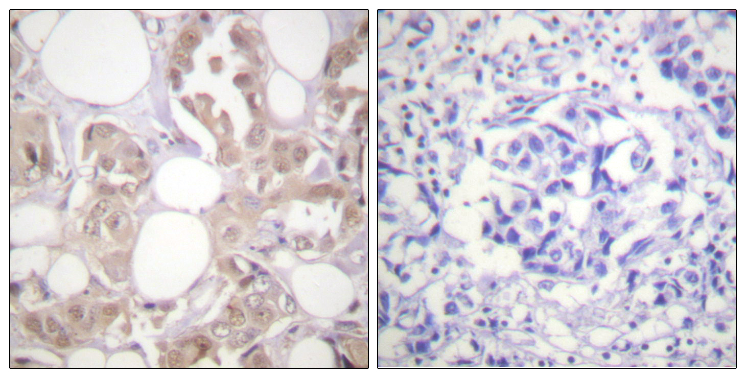 CDK7 (Phospho-Thr170) Antibody (OAAF00180) in Human breast carcinoma cells using Immunohistochemistry