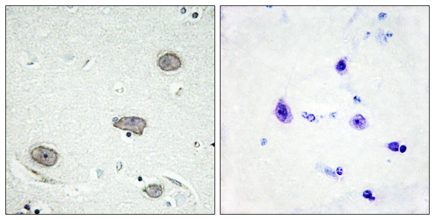 CSF1R (Phospho-Tyr809) Antibody (OAAF00189) in Human brain cells using Immunohistochemistry