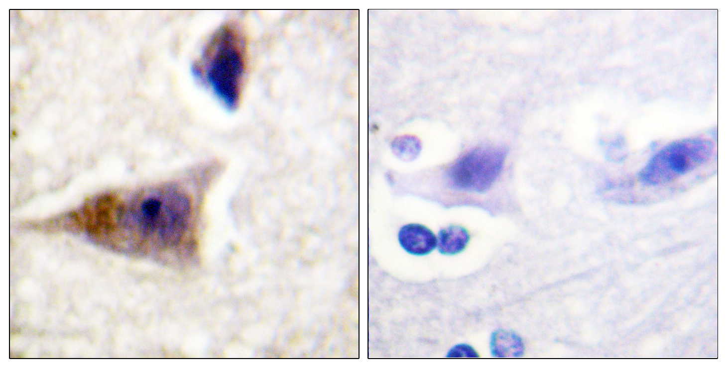 CASP1 (Phospho-Ser376) Antibody (OAAF00213) in Human brain cells using Immunohistochemistry