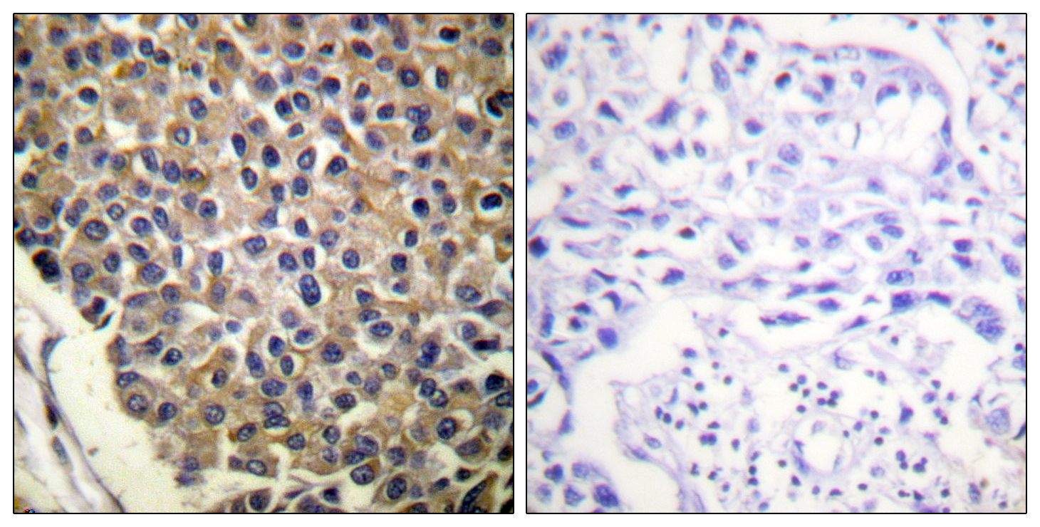 CXCR2 (Phospho-Ser347) Antibody (OAAF00235) in Human breast carcinoma cells using Immunohistochemistry