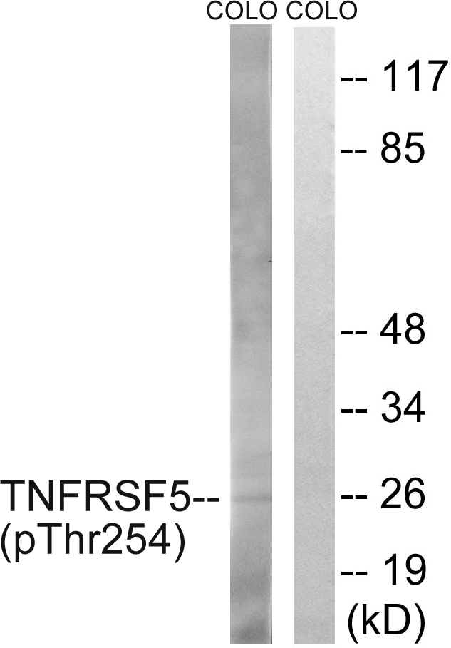 CD40 (Phospho-Thr254) Antibody (OAAF00259) in COLO cells using Western Blot