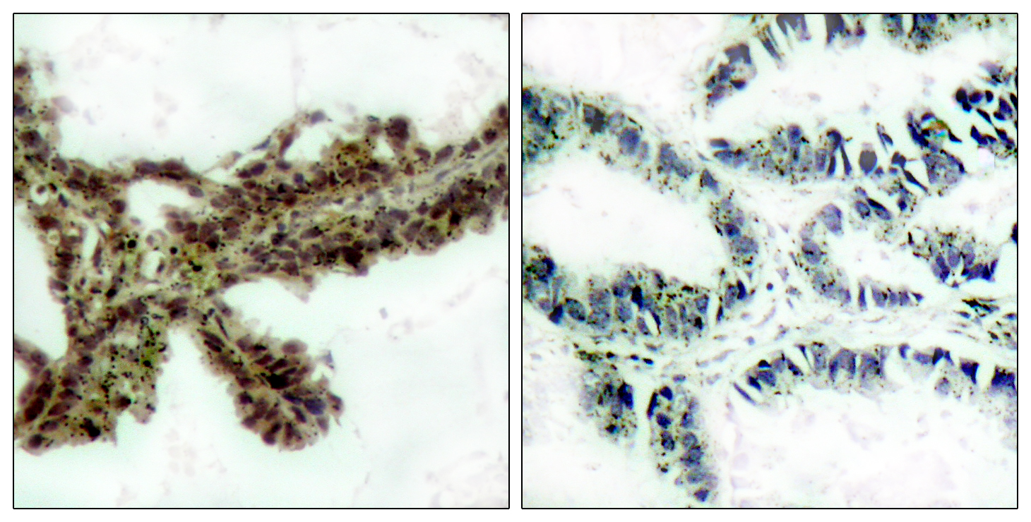AKT1 (Phospho-Thr308) Antibody (OAAF00287) in lung carcinoma cells using Immunohistochemistry