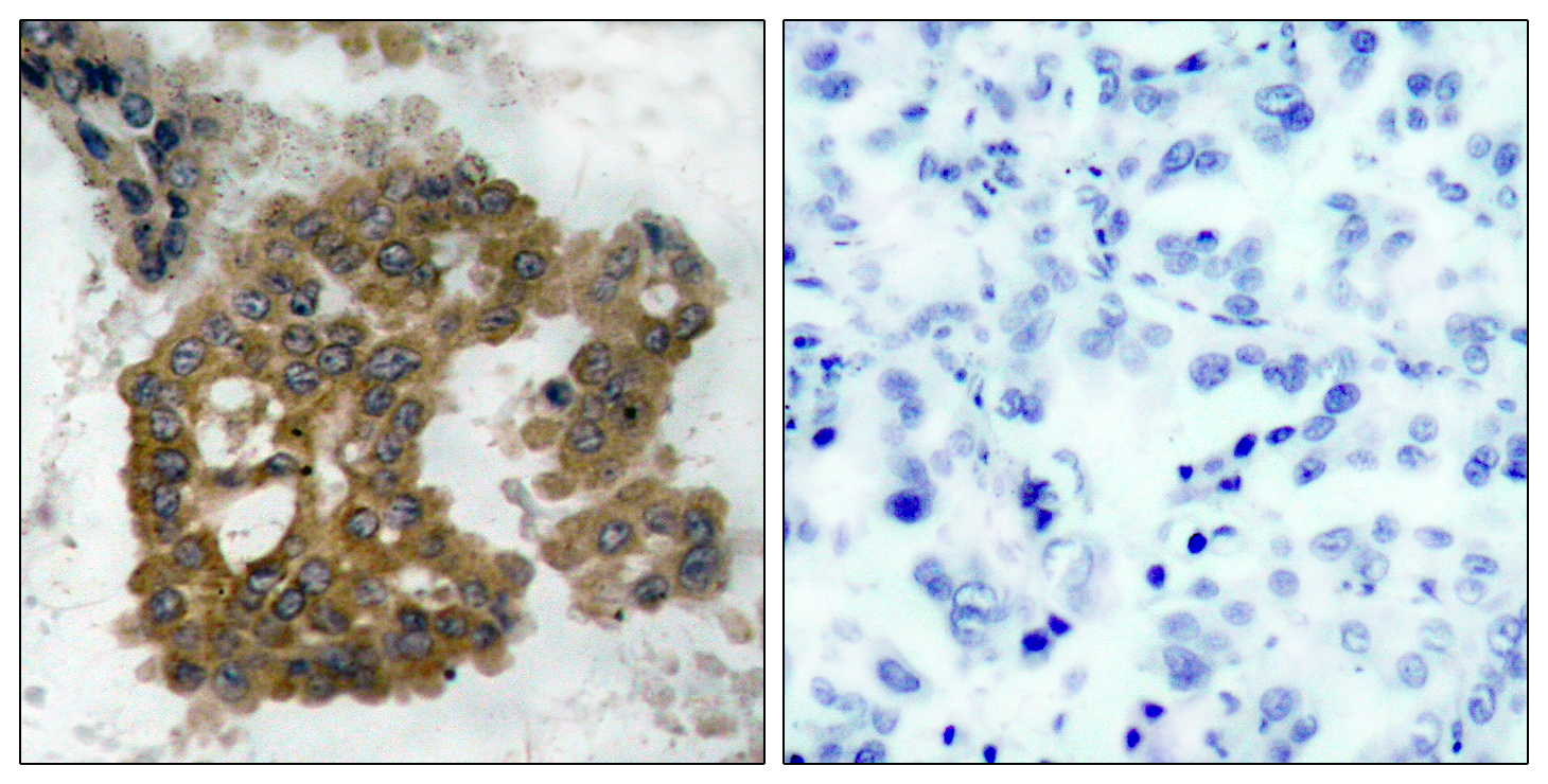 Akt2 (Phospho-Ser474) Antibody (OAAF00288) in Human lung carcinoma cells using Immunohistochemistry