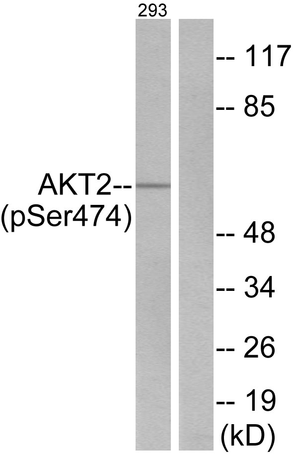 Akt2 (Phospho-Ser474) Antibody (OAAF00288) in 293 cells using Western Blot