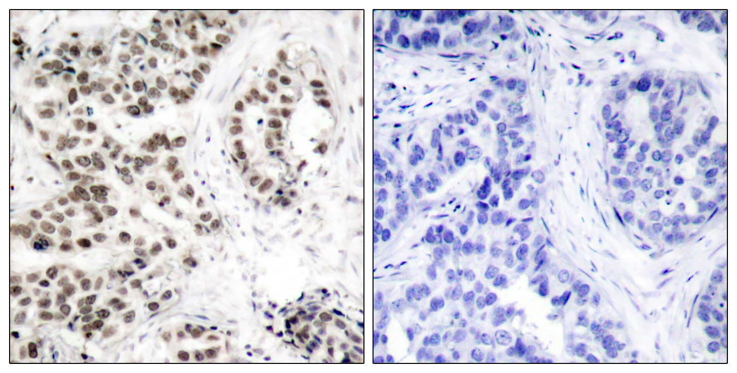 CHEK2 (Phospho-Thr68) Antibody (OAAF00297) in lung carcinoma cells using Immunohistochemistry