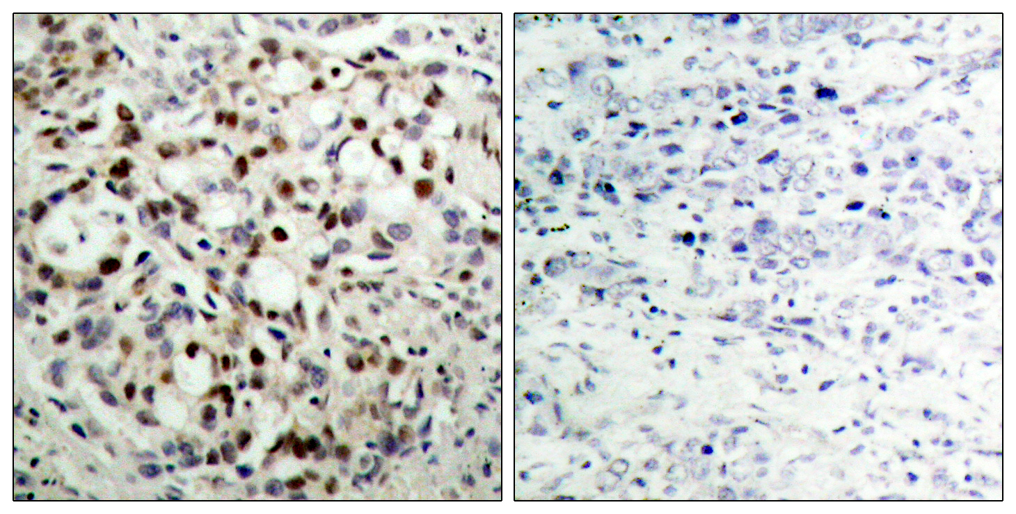CREB1 (Phospho-Ser133) Antibody (OAAF00303) in Human breast carcinoma cells using Immunohistochemistry