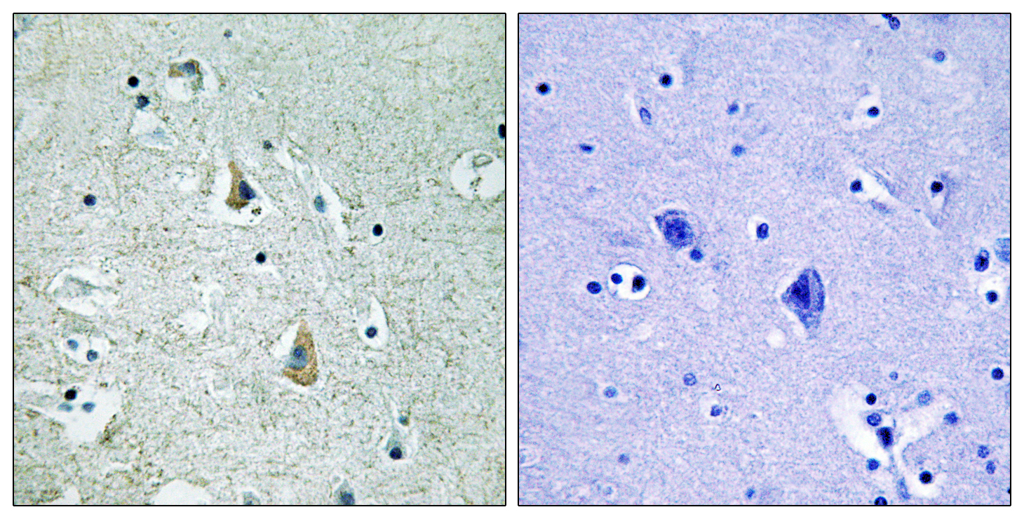 BRAF (Phospho-Ser446) Antibody (OAAF00435) in Human brain cells using Immunohistochemistry