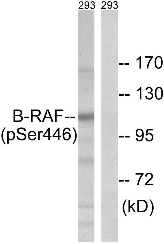 BRAF (Phospho-Ser446) Antibody (OAAF00435) in 293 cells using Western Blot