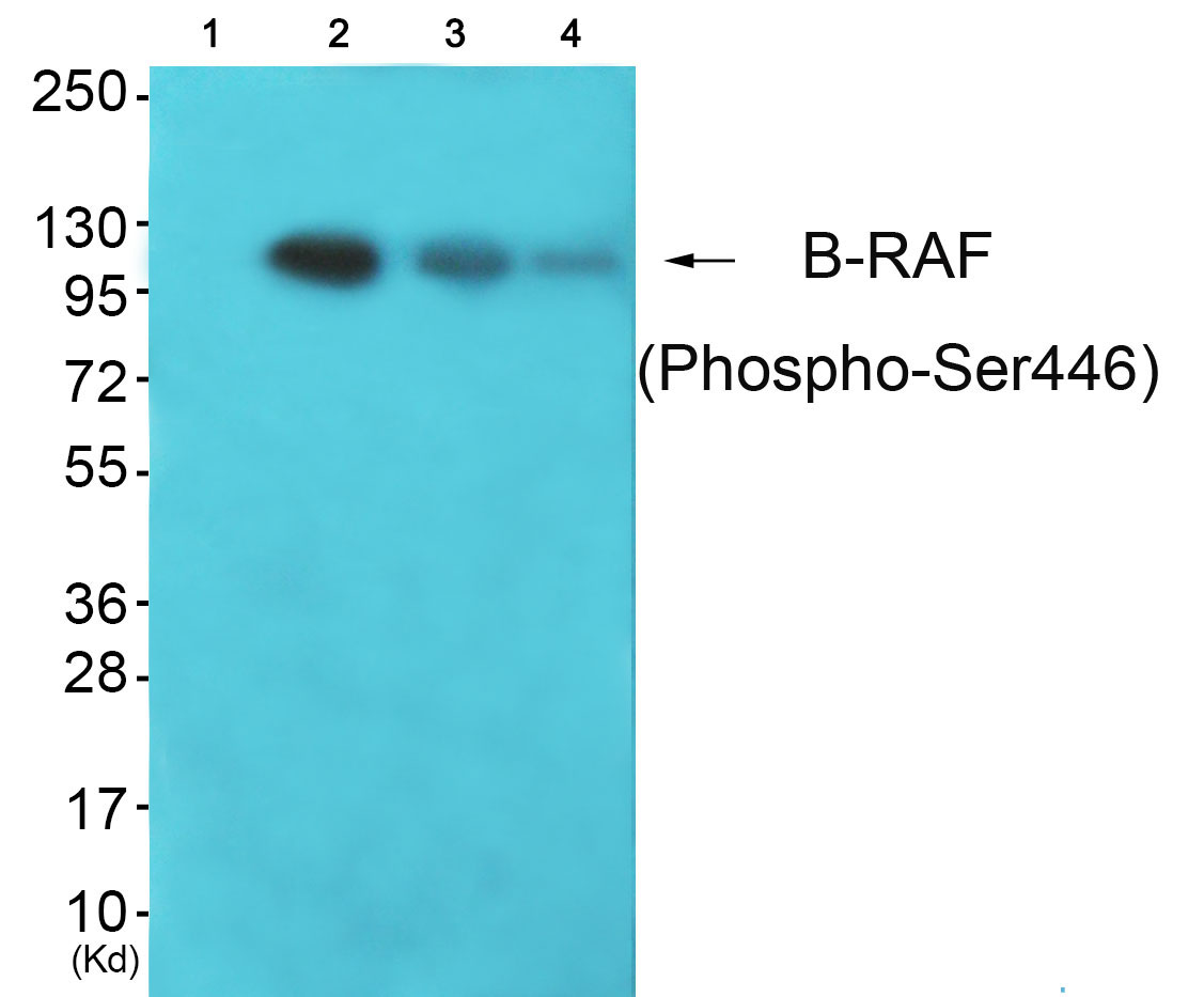 BRAF (Phospho-Ser446) Antibody (OAAF00435) in K562, JK, 293 cells using Western Blot